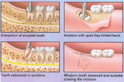 Oral Surgery danbury ct