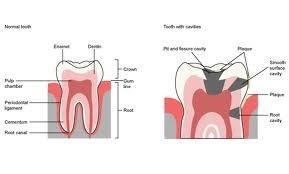 Dental Fillings brookfield ct