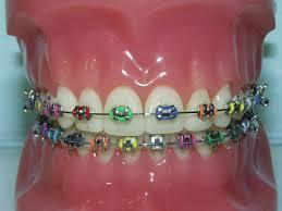 Orthodontics Brookfield CT