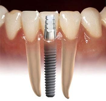 Implantology | New England Dental