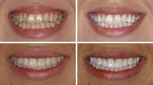 Whitening danbury ct