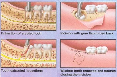 Oral Surgery danbury ct