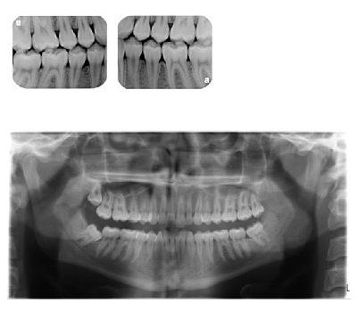 Digital X-rays danbury ct