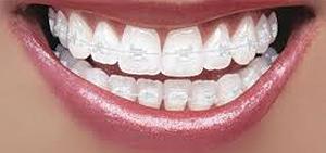 Orthodontics Danbury CT